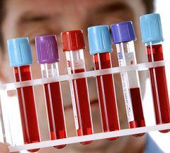 Лечение гиперкальциемии полностью зависит от ее причины