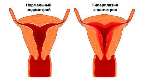 Гиперплазия внешне ведет к тому же результату, что и гипертрофия – какой-либо орган или его участок патологически увеличиваются в размерах