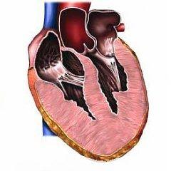 Hipertrofiei ventriculului drept al inimii