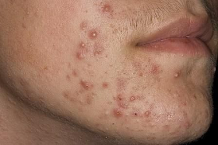 Metoda Independent de tratamentul acneei
