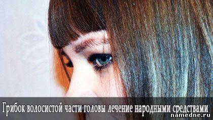Грибок волосистой части головы лечение народными средствами
