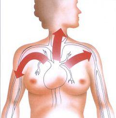 Circuit angină pectorală