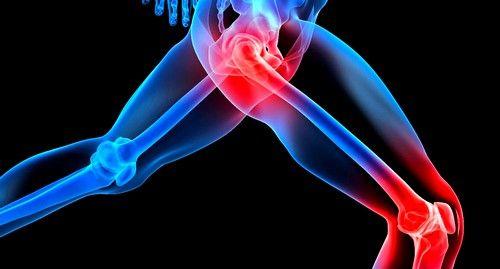 При колите могут наблюдаться боли в суставах