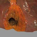 Холецистит - заболевание желчного пузыря