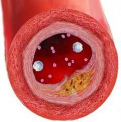 Холестериновые бляшки – что за зверь?