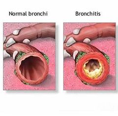 Хронический бронхит