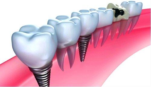 dentalnih implantata imaju visoke čvrstoće, oni značajno utječu na kvalitetu života
