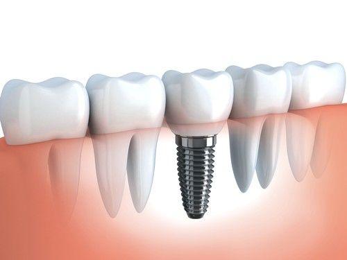 Nehirurško implantata imaju niz prednosti u odnosu na druge metode oporavka niz vilice