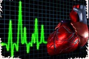 infarkt miokarga kak ego raspoznat