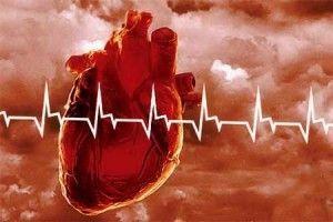 infarkt serdca