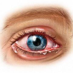 Иридоциклит — воспаление сосудистой оболочки переднего отдела глазного яблока