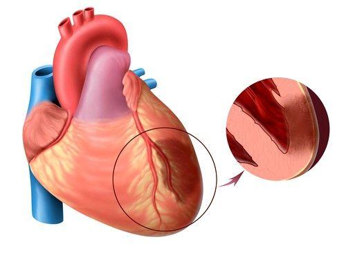 Стентирование необходимо при остром некрозе мышцы сердца