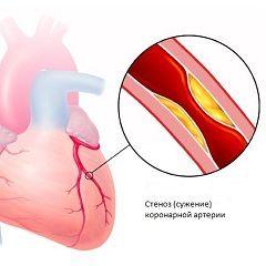 Ишемическая болезнь сердца - поражение миокарда