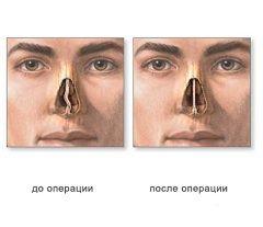 Септопластика - операция на искривленной перегородке носа
