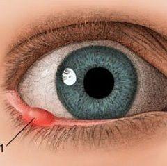 Ячмень на глазу - гнойное воспаление
