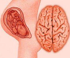 Перинатальная энцефалопатия развивается ещё в утробе