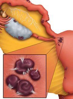Маточные кровотечения - один из симптомов эндометриоза