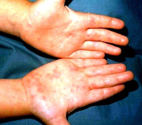 Обильные кожные высыпания – это второй сценарий, которым может проявлять себя энтеровирусная инфекция у детей