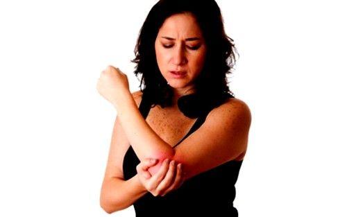 Epicondilită a articulației cotului de orice tip se manifestă în primul rând de sindromul de durere, au propriile lor caracteristici