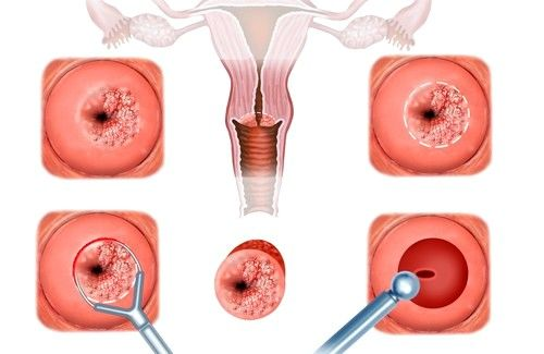 U pravi oblik erozije je rezultat teške rođenja ili hirurške intervencije u toku intrauterinog prostor