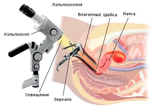 U kolposkopija, za pregled grlića pomoću posebnog optičkog uređaja, koji ima povećanje 25-30 puta