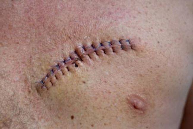 После операции по удалению меланомы может оставаться рубец
