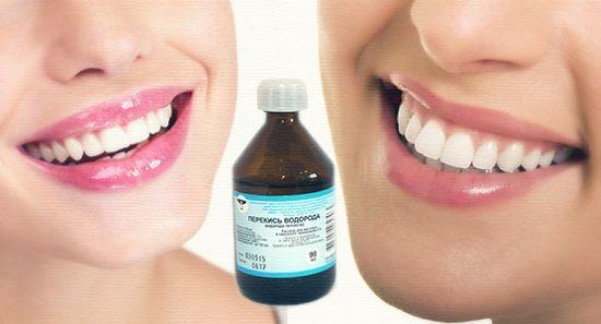 Отбеливаем зубы при помощи перекиси