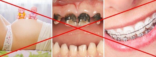Отбеливать зубы не всегда можно