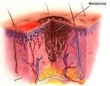 Как проводится дифференциальная диагностика меланомы