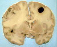 Как распознать и вылечить меланому головного мозга