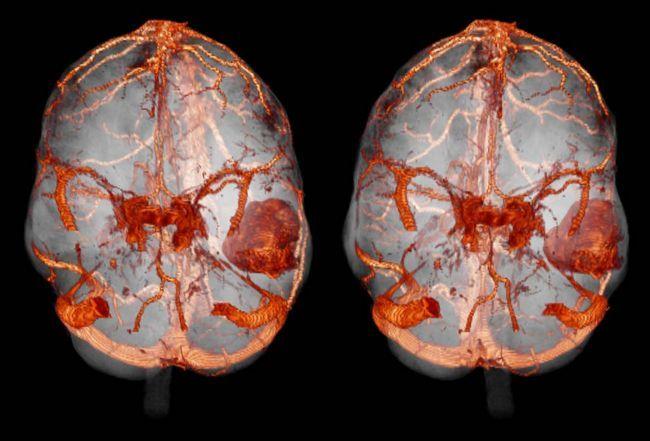 Несмотря на то, что метастазы в мозг могут дать абсолютно любые опухоли, есть ряд локализаций, которые приводят к печальному результату чаще всего