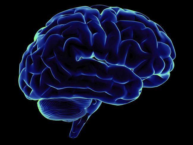 В головном мозге рецидив появляется, как правило, спустя 2 года