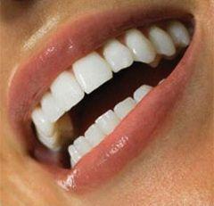 Крепкие зубы - показатель здоровья всего организма