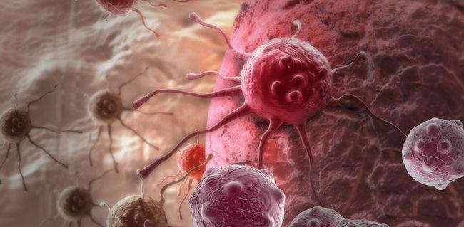 На 4 стадии меланома метастазирует в другие органы