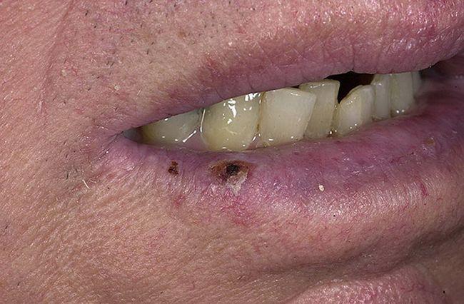 По внешнему виду рак губы напоминает небольшое образование либо уплотненный участок