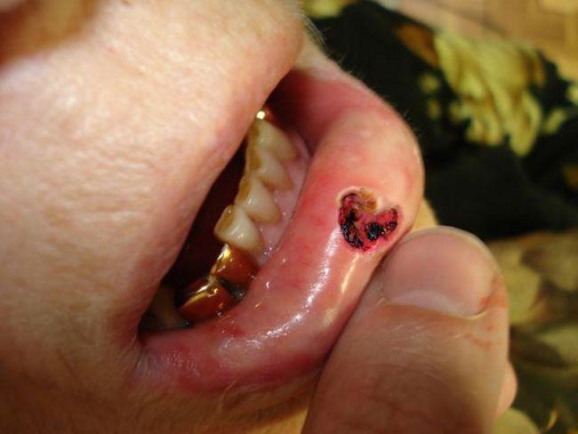 Эндофитный плоскоклеточный рак нижней губы