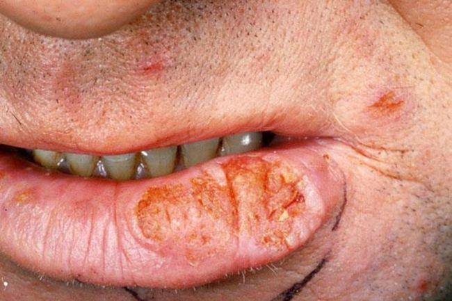 Как правило, рак возникает на нижней губе