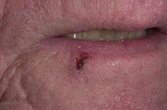 Прогноз при меланоме на губе зависит от стадии заболевания и своевременности лечения