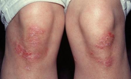 При псориазе появляются характерные чешуйки на коже, особенно в так называемых травматических зонах - на локтях, коленях, волосистой части головы.
