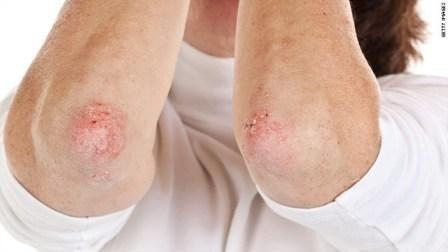 Формы и проявления этой болезни очень разные — это псориаз на локтях, коленях, стопах, ногах, спине и других частях тела.