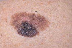 Какие причины способствуют появлению меланомы
