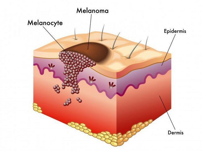 Меланома не только быстро идет в рост, но и распространяется в более глубокие слои кожи