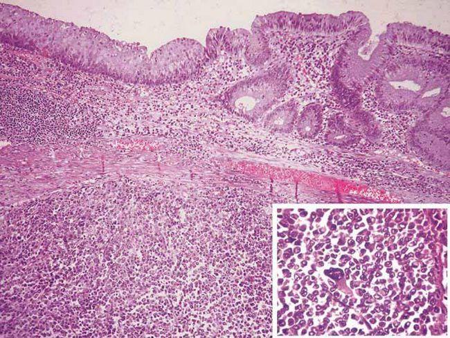 Локализация опухоли различная: может быть поражена вся область аноректальной зоны или ее часть, нижнеампулярный отдел