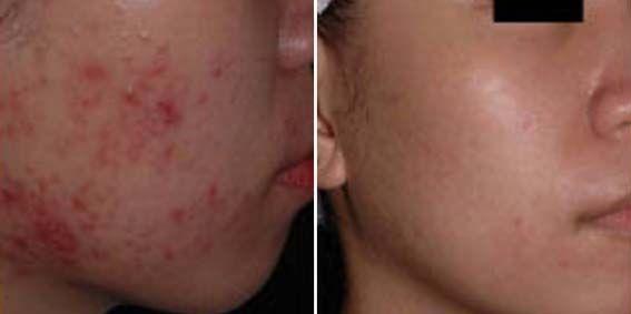 Osloboditi ožiljaka nakon akni kod kuće