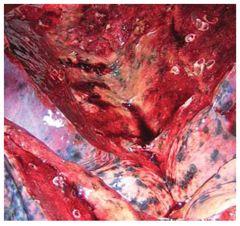 cardioscleroză fotografie