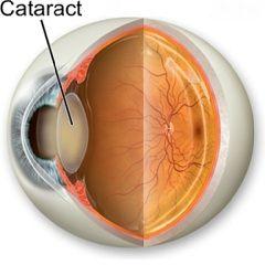 Катаракта - расстройство зрения