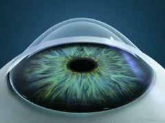 Кератоконус — истончение и выпячивание роговицы глаза