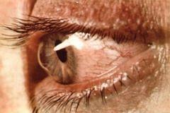 Кератоконус развивается на одном глазу, но позже поражает и второй