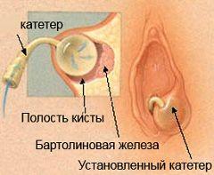 Introducere cuvânt-cateter - o metoda de tratament al chistului glandei Bartholin