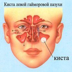Гайморит - одна из причин развития кисты гайморовой пазухи